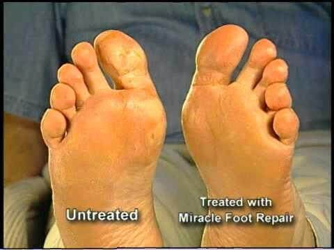 Miracle Foot Repair Cream 226g.