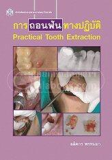 การถอนฟันทางปฏิบัติ (practical Tooth Extracti On).