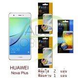 ขาย Focus ฟิล์มกันรอย Huawei Nova Plus ใส 2 แผ่น ด้าน 1 แผ่น