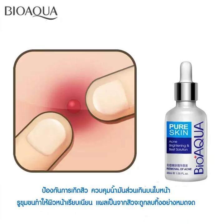 Pure Skin Removal of Acne Brightening Best Solution Essence 30ml เซรั่มรักษาสิว ลดรอยดำจากสิวที่หายแล้ว ช่วยให้หลุมสิวตื้นขึ้น หน้าขาวใส
