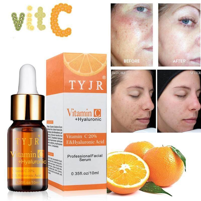 เซรั่ม วิตามินอี 20% เซรั่มบำรุงผิว เซรั่มหน้าใส เซรั่มทาหน้า ทาลำคอ ซีรั่ม ไวท์เทนนิ่ง ต่อต้านริวรอย ให้ความชุ่มชื่น ลดจุดด่าดำ Natural Vitamin C Serum With Hyaluronic Acid Vitamin E Best Organic Anti Aging Anti Wrinkle Serum Moisturizer For Face Neck.
