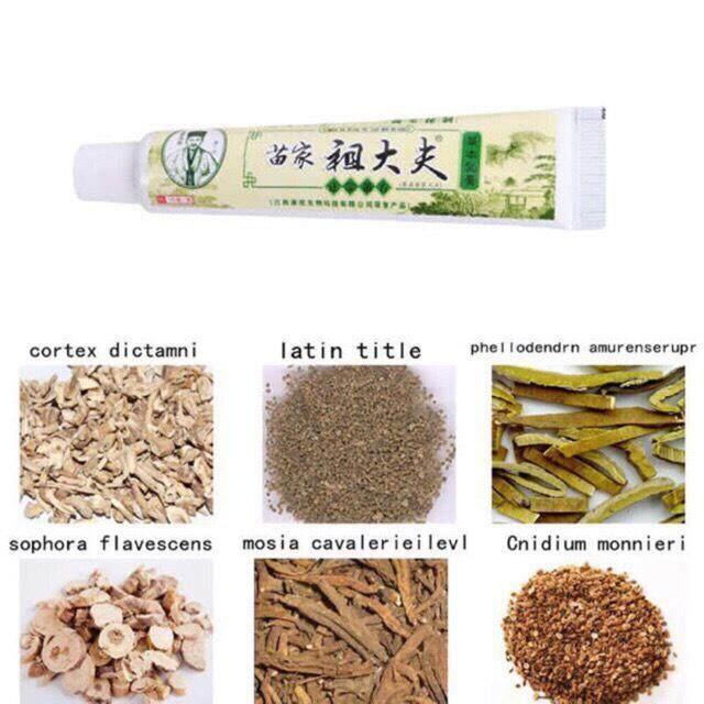 ครีมสมุนไพรจีนรักษาโรคผิวหนังกลากเกลื้อน โรคสะเก็ดเงิน โรคนำ้กัดเท้า ต้านเชื้อแบคทีเรีย By Eternity__.