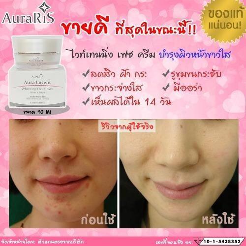 ขอ  ถามคนที่ใช้ AuraRIS Whitening Face Cream ครีมหน้าขาว ครีมผิวขาว ขาวกระจ่างใส 10 ml. ขาวจริง