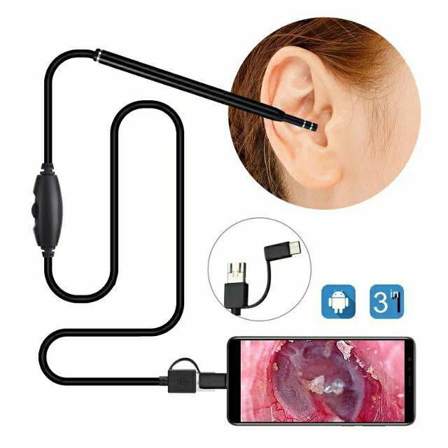 กล้องส่องหู 720p Hd ส่องดูช่องปาก คอและจมูกได้ ที่แคะหู มีกล้อง ต่อภาพวีดีโอ เข้ามือถือandroid,คอมพิวเตอร์ได้ กล้องวีดีโอส่องหู มีแถมที่แคะหู แคะหูพร้อมส่องกล้องได้ กล้องส่องขี้หู กล้องส่องรูหู ลดราคา(ไม่มีกล่อง) มีแบบใส่ซองซิปใสหรือแบบแถมกระเป๋าซิปคละสี.