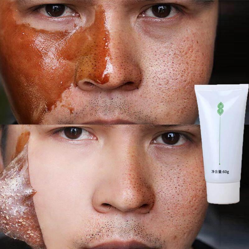 Blackhead Remove Mask มาส์กหน้าลอกสิวหัวดำ มาส์คหน้ากำจัดสิวเสี้ยน โคลนดำพอกหน้า ควบคุมความมัน ปรับสภาพผิวแห้งกร้านให้ชุ่มชื้น กระชับรูขุมขน.