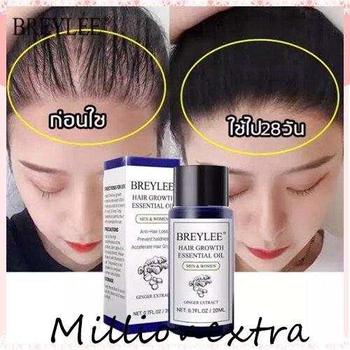 ของแท้ 100% * Breyleeเซรั่มปลูกผม ป้องกันผมร่วง บํารุงผมแห้งเสีย แตกปลาย ไร้น้ำหนัก เป็นผลิตภัณฑ์บำรุงเส้นผมที่ดี๊ดี Hair Growth Essential Oil 20ml Fast Powerful Hair Products Hair Care Prevent Baldness Anti-Hair Loss Serum Nourishing.