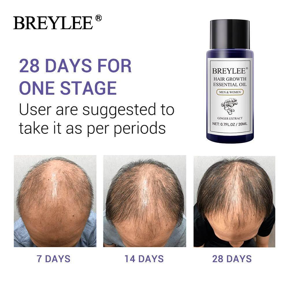 ของแท้ Breylee Hair Growth ยาปลูกผม  ป้องกันผมร่วง รักษาหัวล้าน สารสกัดจากขิง ปลูกเส้นผมอย่างรวดเร็ว   เซรั่มบำรุงผม เซรั่มปลูกผม ลดผมร่วง เร่งผมยาว รับประกันความพึงพอใจ  Growth Essence(20ml).