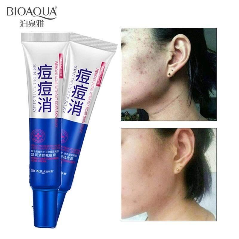 ครีมแต้มสิว ลดฝ้ากระ จุดด่างดำ Acne Treatment Cream Anti Acne Scar Removal Gel.