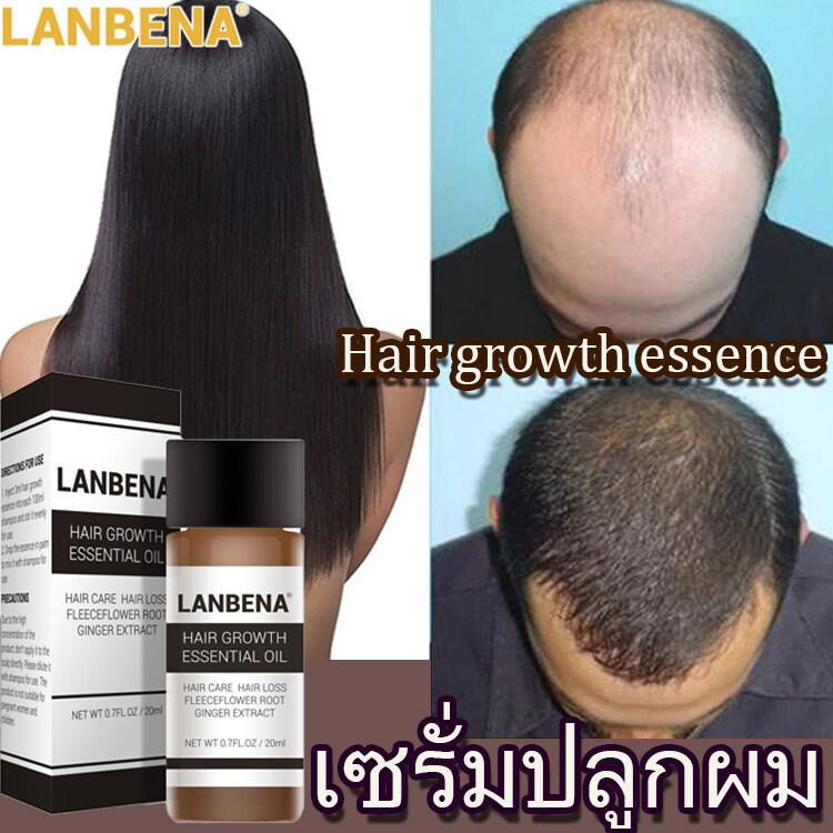 เซรั่มปลูกผม Lanbena ป้องกันผมร่วง ขิง & สาระสำคัญของโสม ยาปลูกผม ป้องกันผมร่วง รักษาหัวล้าน Growth Essence Hair Care ทรีทเม้นท์บํารุงผมสำหรับผมเเห้งเสียมาก ผมบาง ฟื้นฟูผมแห้งเสีย บำรุงผม ผมร่วง บำรุงราก แห้งฟู หักง่าย Lanbena Hair Care.